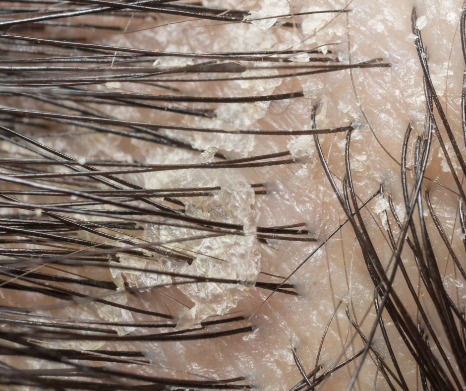 4.3 Problematická pokožka apadání vlasů